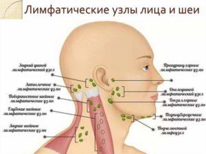 Почему появляется шишка на челюсти и что с этим делать